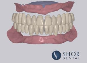 Digital dentures Shor Dental