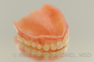 Complete Denture by Seattle Prosthodontist, Shor Dental, Alexander Shor Seattle