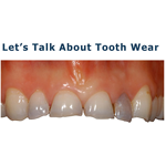 Tooth Wear – What You Need to Know.