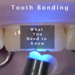 Teeth-Bonding-What-You-Need-to-Know-title-Slide-copy