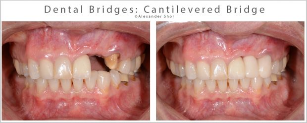 Dental Bridges Cantilevered Bridge