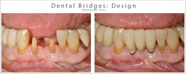 Dental Bridges Design