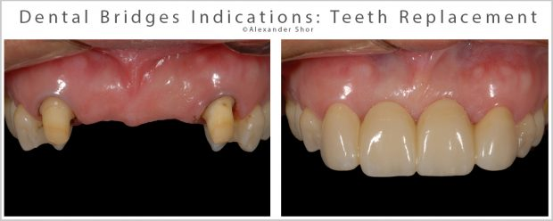 Dental Bridges Indications