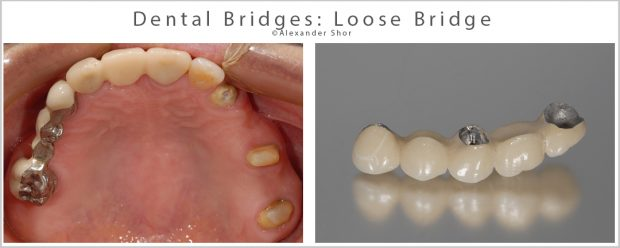 Dental Bridges Loose Bridge