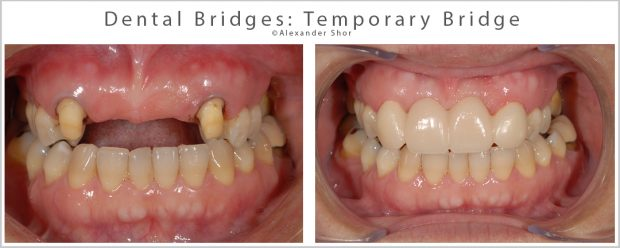Dental Bridges Temporary