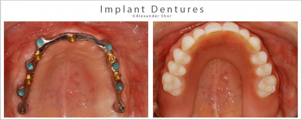 Implant Dentures Seattle