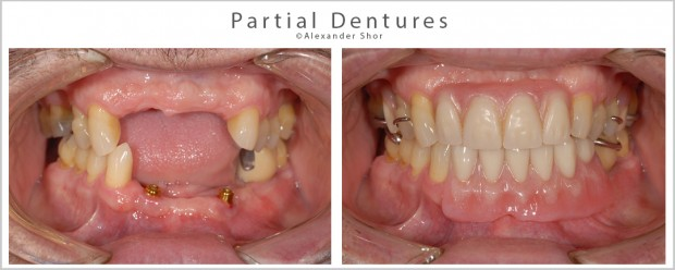 Seattle Dentures Partials