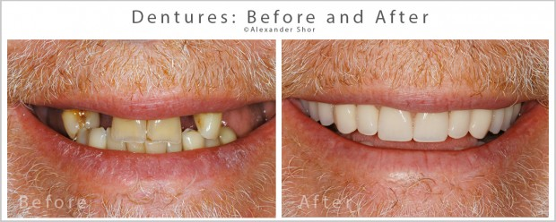 Dentures before after SEA