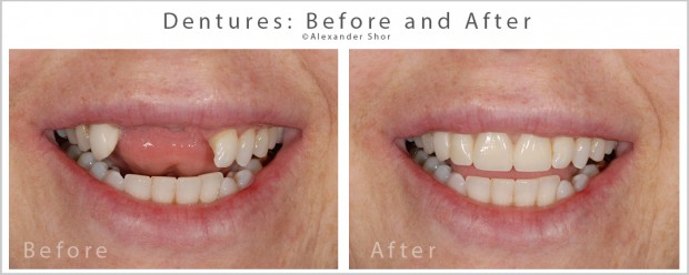 Partial denture beofre and after SHor Dental 5