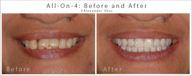 All on 4 Dental Implants Seattle