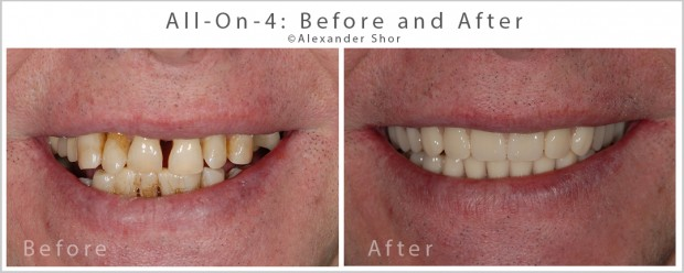All on 4 Dental Implants Before and After Dr. Shor