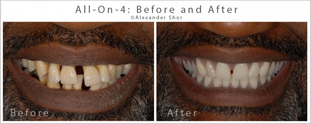 Seattle All on 4 Dental Implants Before and After