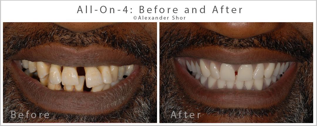 all on 4 dental implants before after seattle shor dental. Black Bedroom Furniture Sets. Home Design Ideas