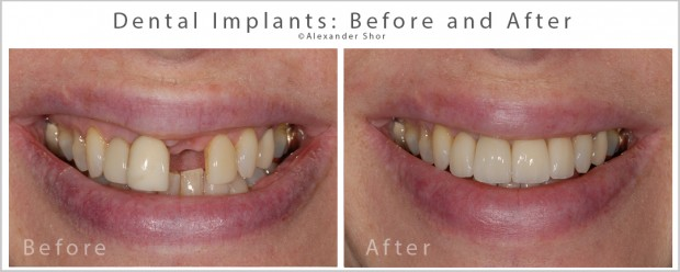 Dental Implants Before and After Alexander Shor