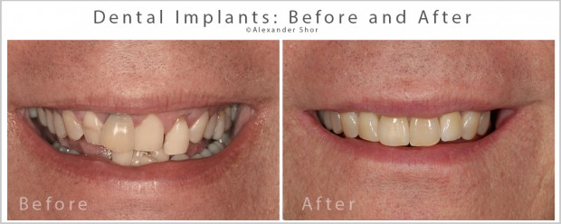 Dental Implants Before & After Seattle