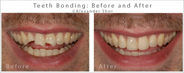 Teeth Bonding Before and After Seattle