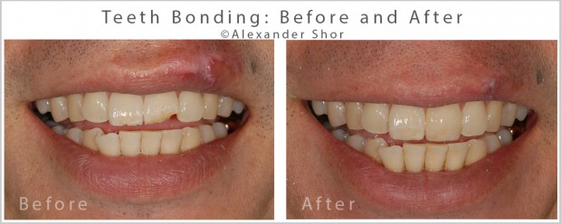 Teeth Bonding Before and After 4 Alexander Shor Dental copy