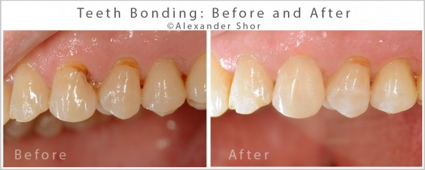 Teeth Bonding Before and After 5  Alexander Shor Dental copy