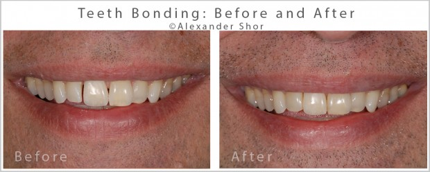 Teeth Bonding Before and After 6 Alexander Shor Dental copy